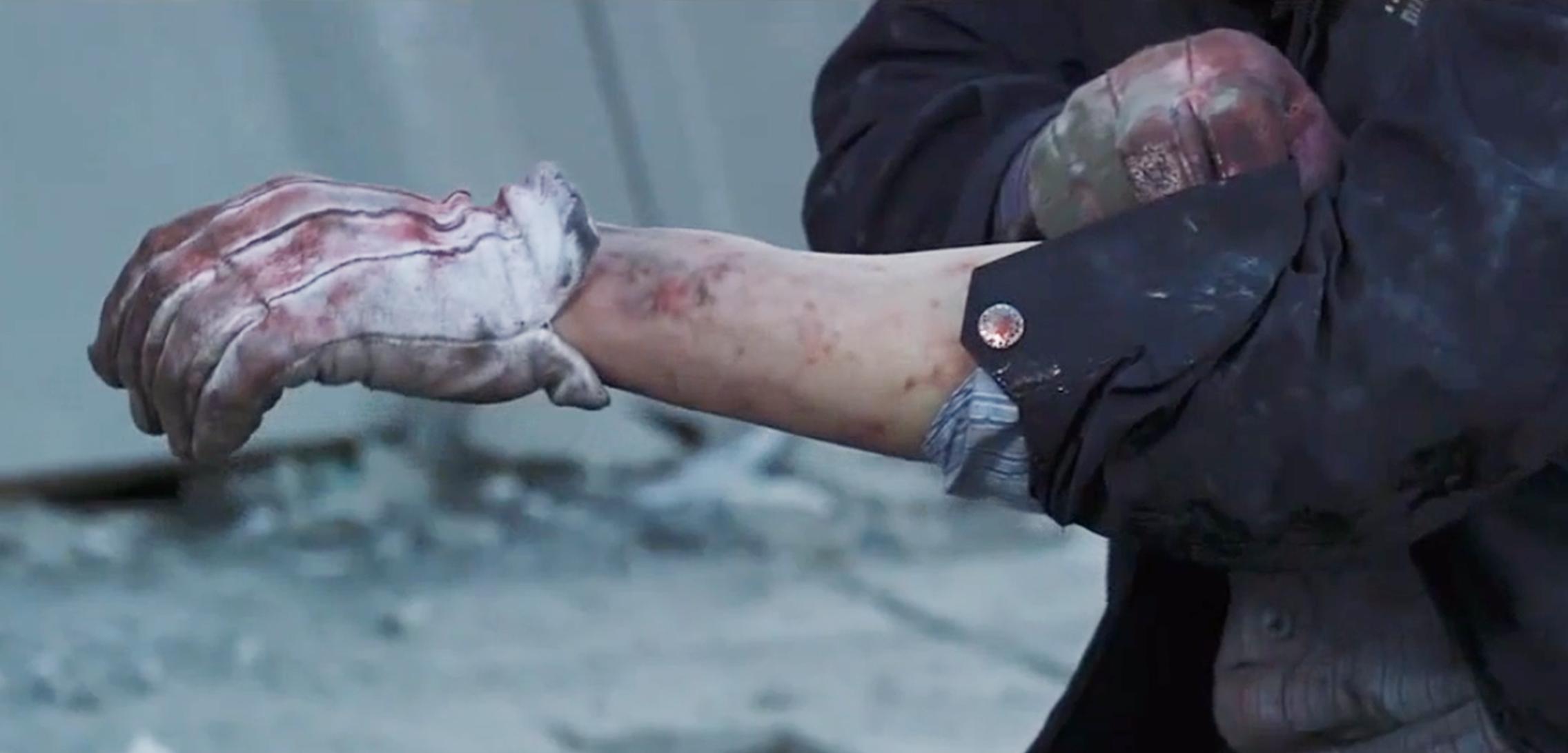 男子翻开袖子,看清手臂的情况,坐在地上大哭!