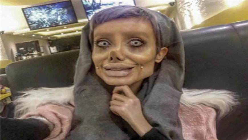 土耳其19岁少女整容50次,梦想拥有朱莉美貌,却变僵尸新娘!