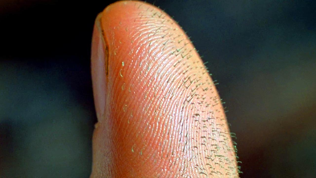 """小伙被蜘蛛咬了一口,手指长出绿色刺头,原来是蜘蛛的""""爪子""""!"""